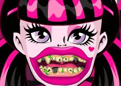 Draculaura rossz fogai